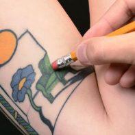borrar-tatuaje